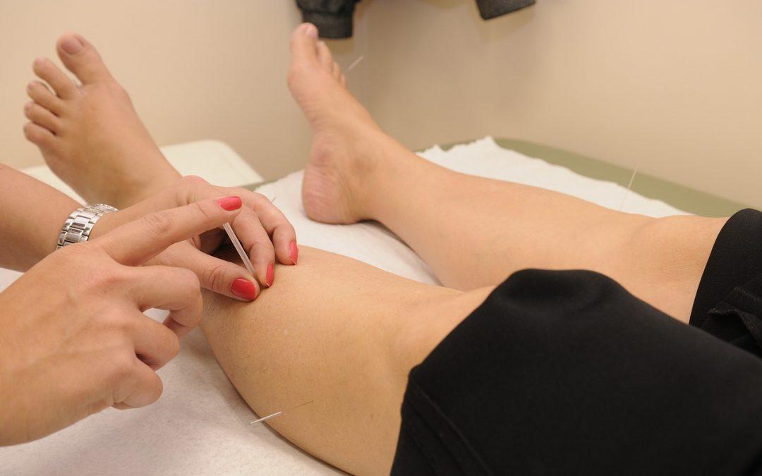 O que trata a acupunctura?
