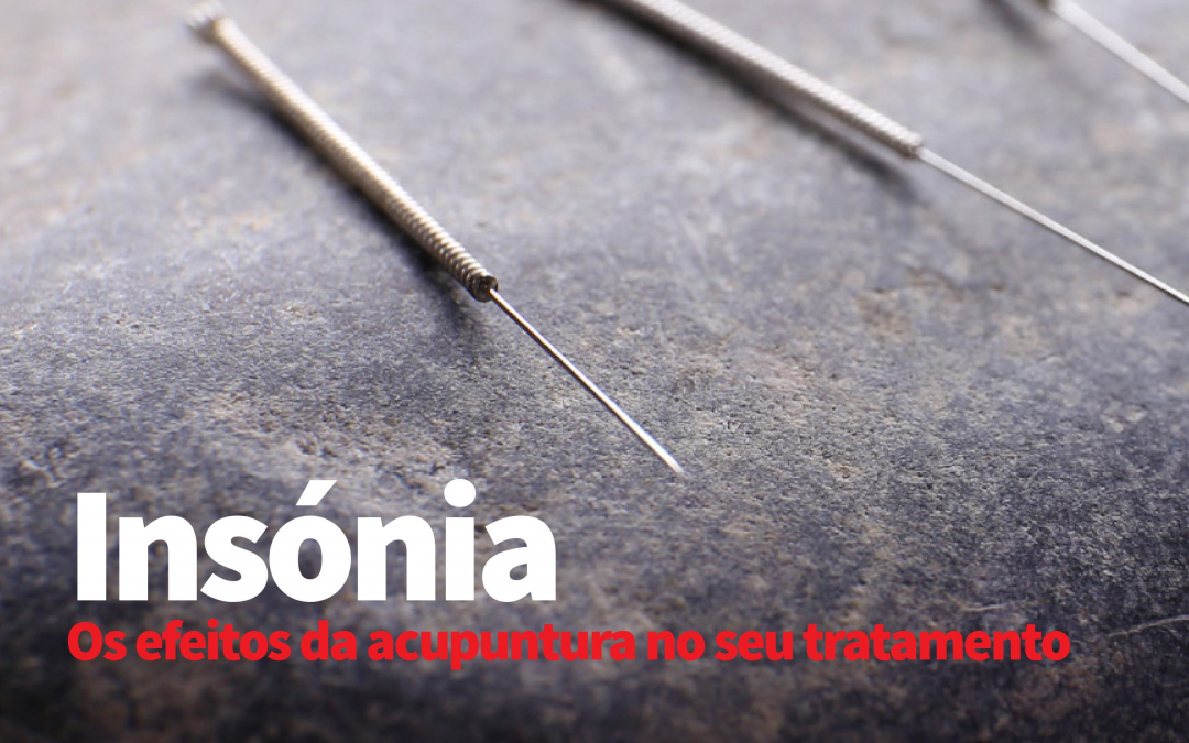 Os efeitos da acupuntura no tratamento da insónia